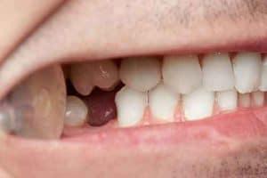 השתלת שן קדמית חשיבות השן